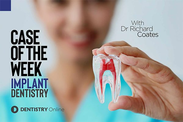 The second in our new 'case of the week' feature sees Richard Coates talk through how he helped a patient regain her smile