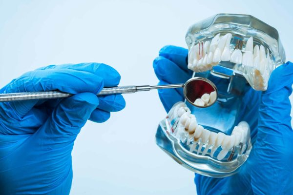 Members of the British Dental Association (BDA) have launched legal action against the association following a data breach
