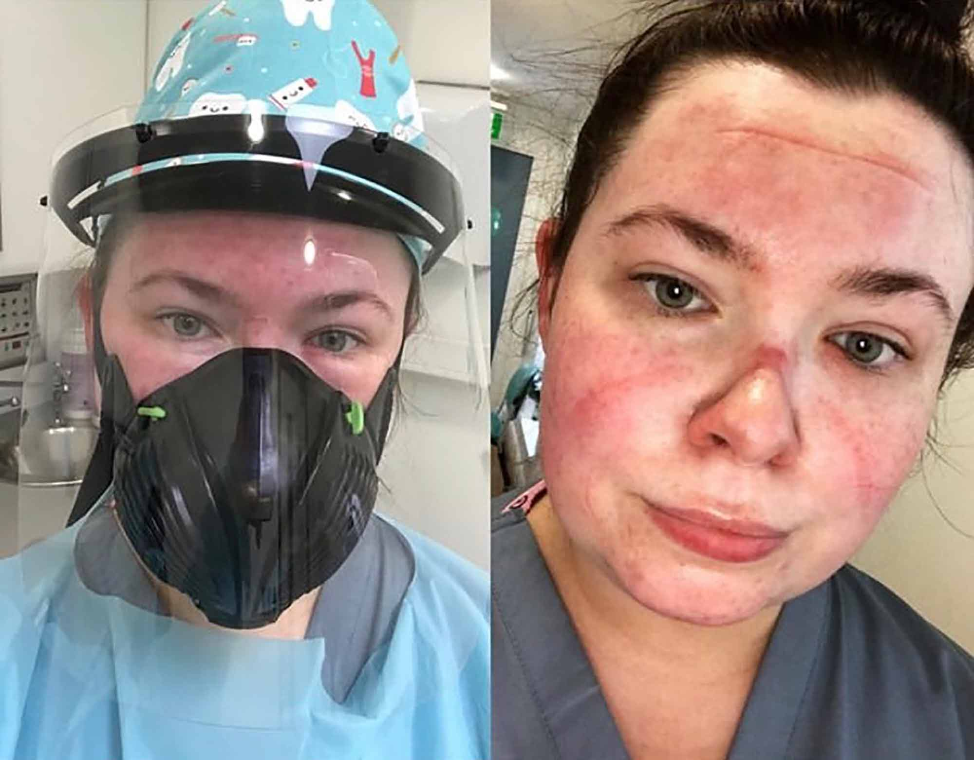 We hear from three dental nurses about how the role has been shaped and changed by the pandemic – and why they think so many have chosen not to re-register with the GDC