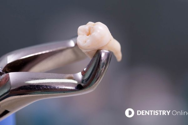 Babies are being born without wisdom teeth as new research shows the human race is passing through a 'microevolution'