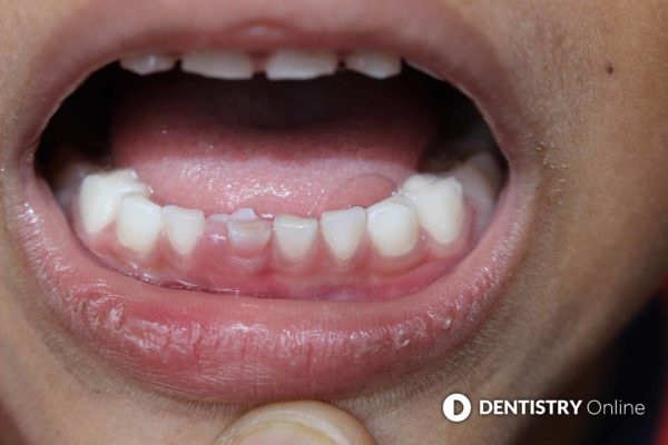 erosive tooth wear on a child