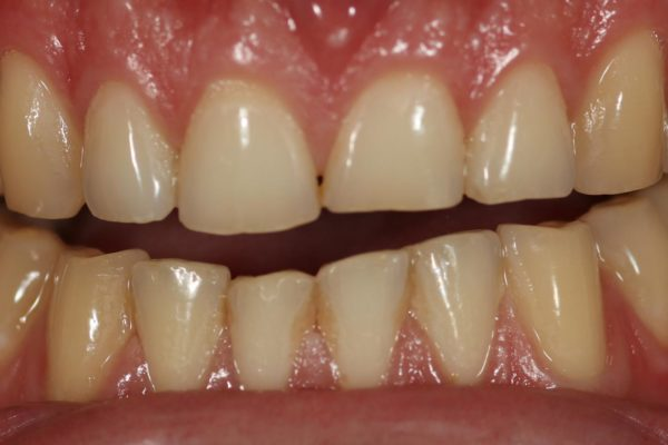 toothwear due to bruxism