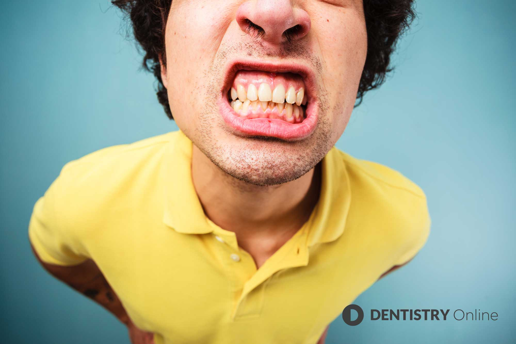COVID-19 lockdown stress and anxiety upped rates of daytime jaw clenching and bruxism, findings from a new study have revealed