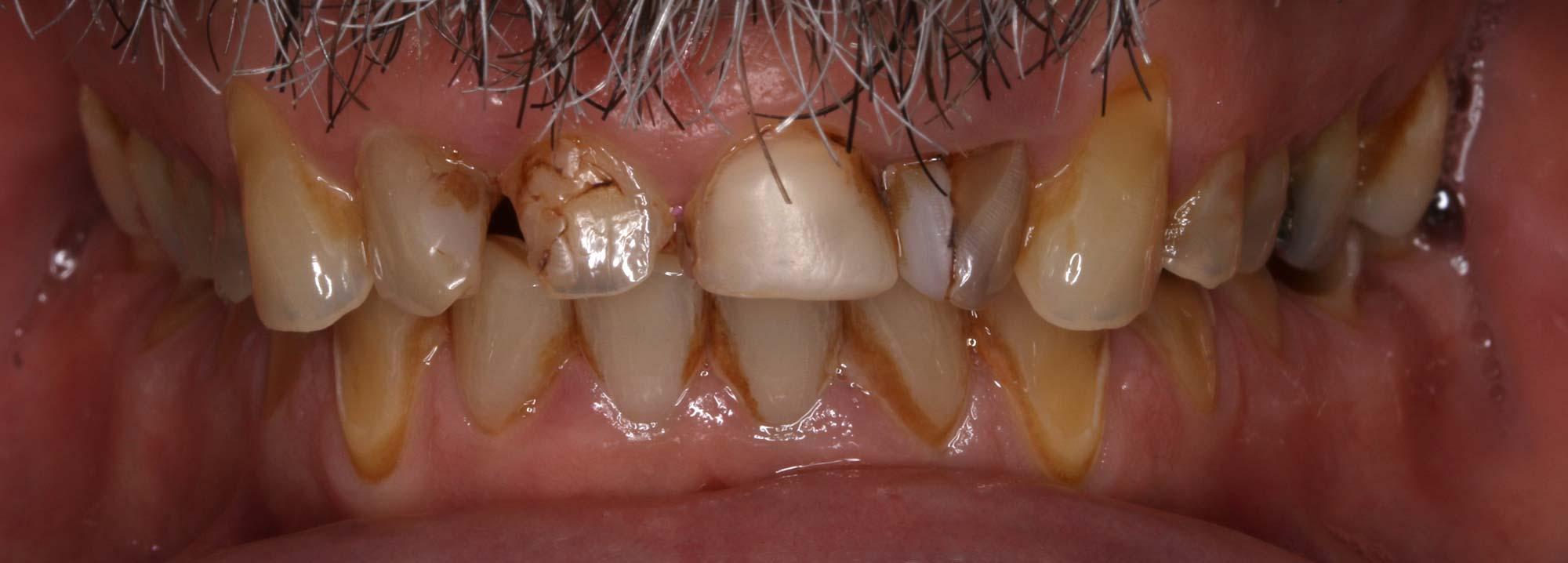 toothwear