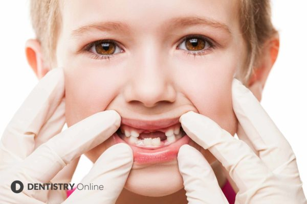 The number of dental treatments carried out on children in the UK has more than halved in the last 12 months, it has been revealed