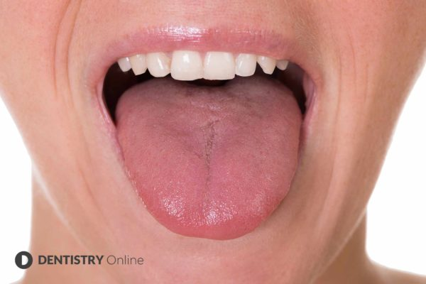 Increasing cases of 'COVID tongue' are being seen in coronavirus positive patients, according to a health expert
