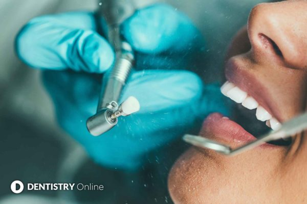 tooth polish procedure