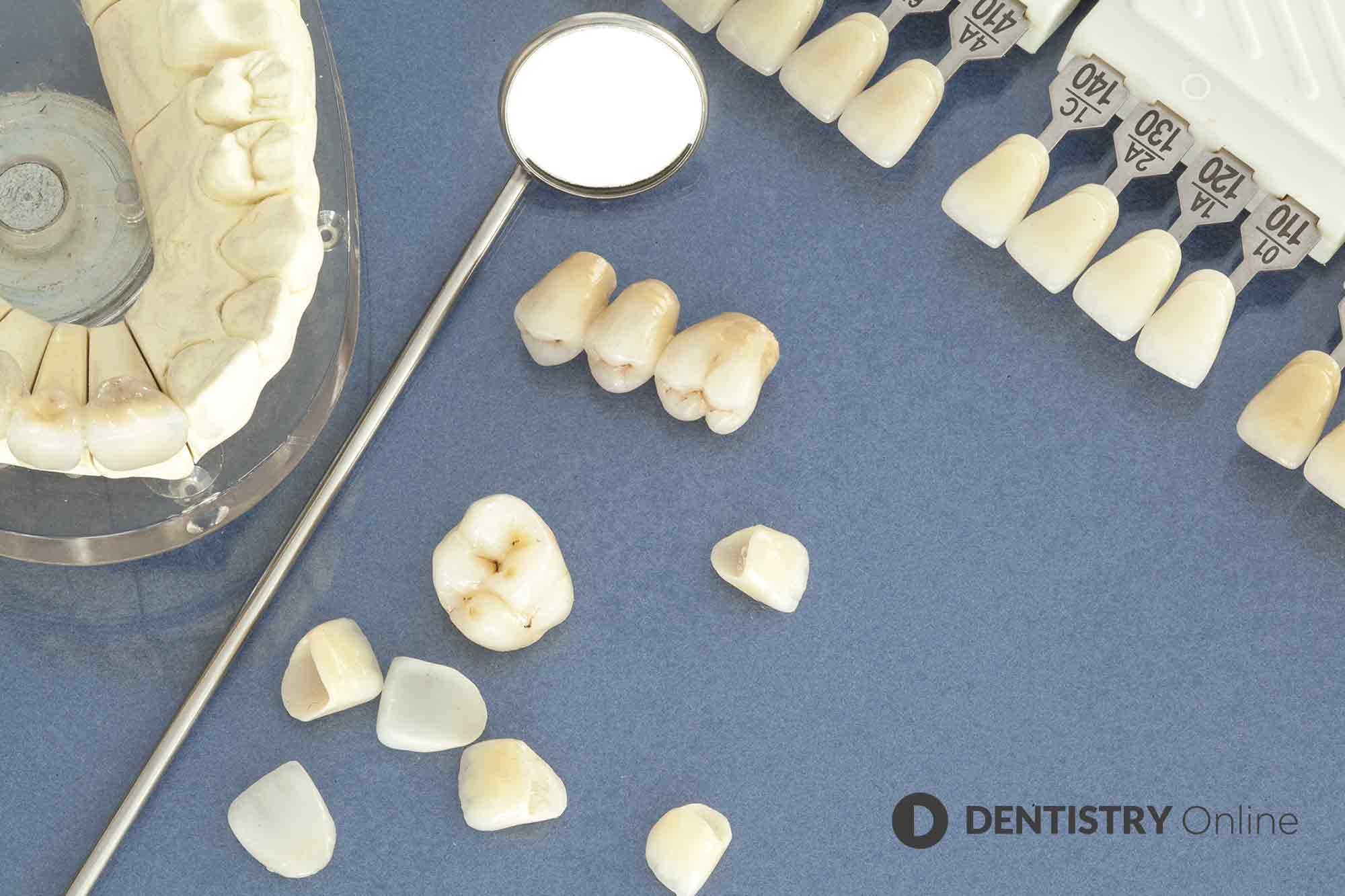 Achieving the perfect colour match for your restorations