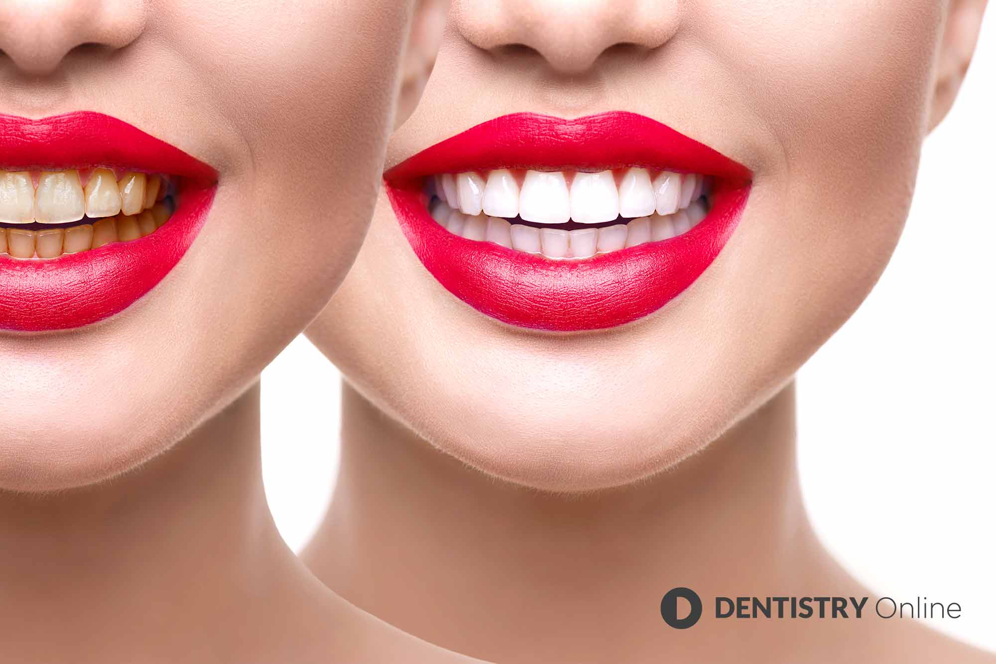Bitten by the whitening bug. The general public is still worryingly unaware of the legal requirement for tooth whitening to be performed only by dental professionals