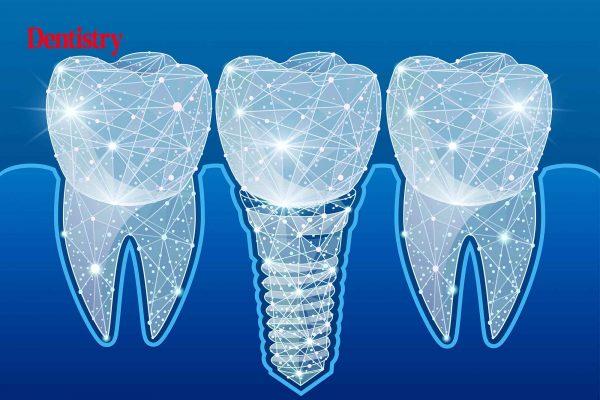 digital implant workflow