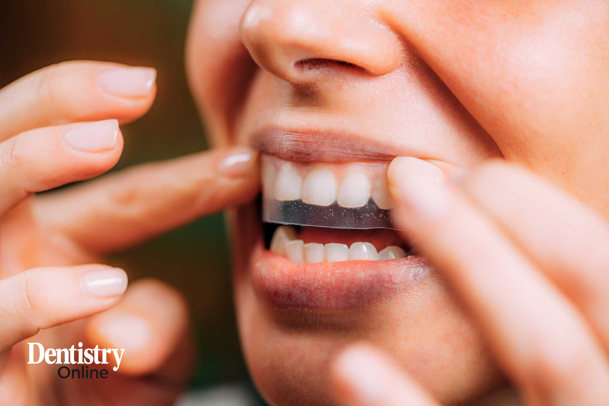 illegal tooth whitening