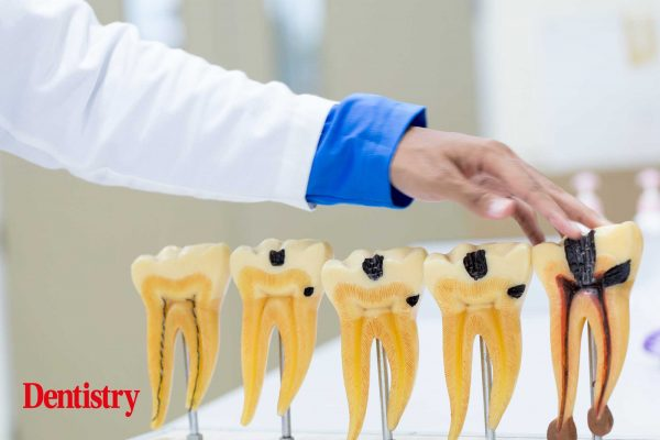 root canal or implant