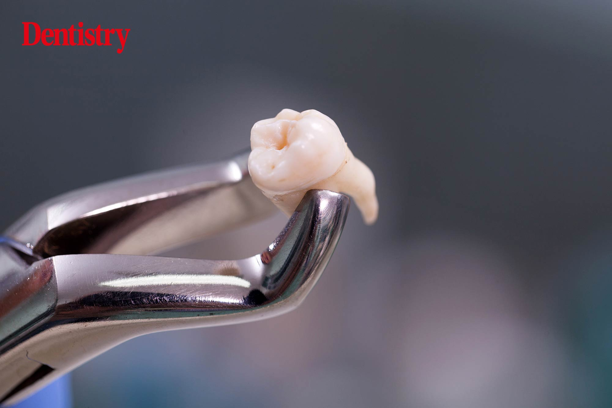 Wrong tooth extractions have been removed from the NHS's Never Event list, it has been confirmed