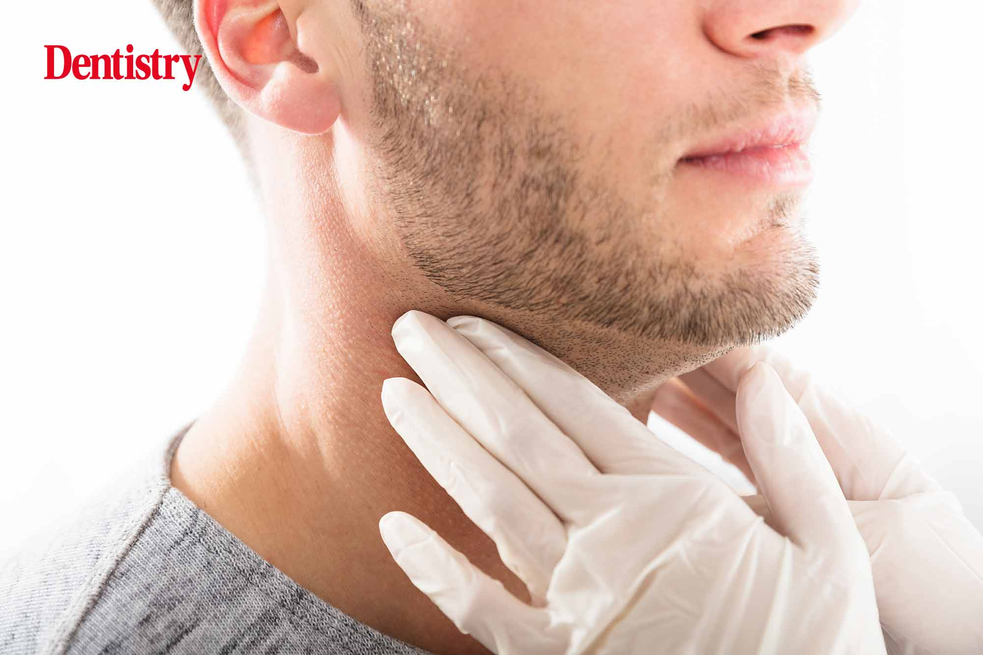 Up to half of patients who suffer from head and neck cancer will experience tumour recurrence or new tumours