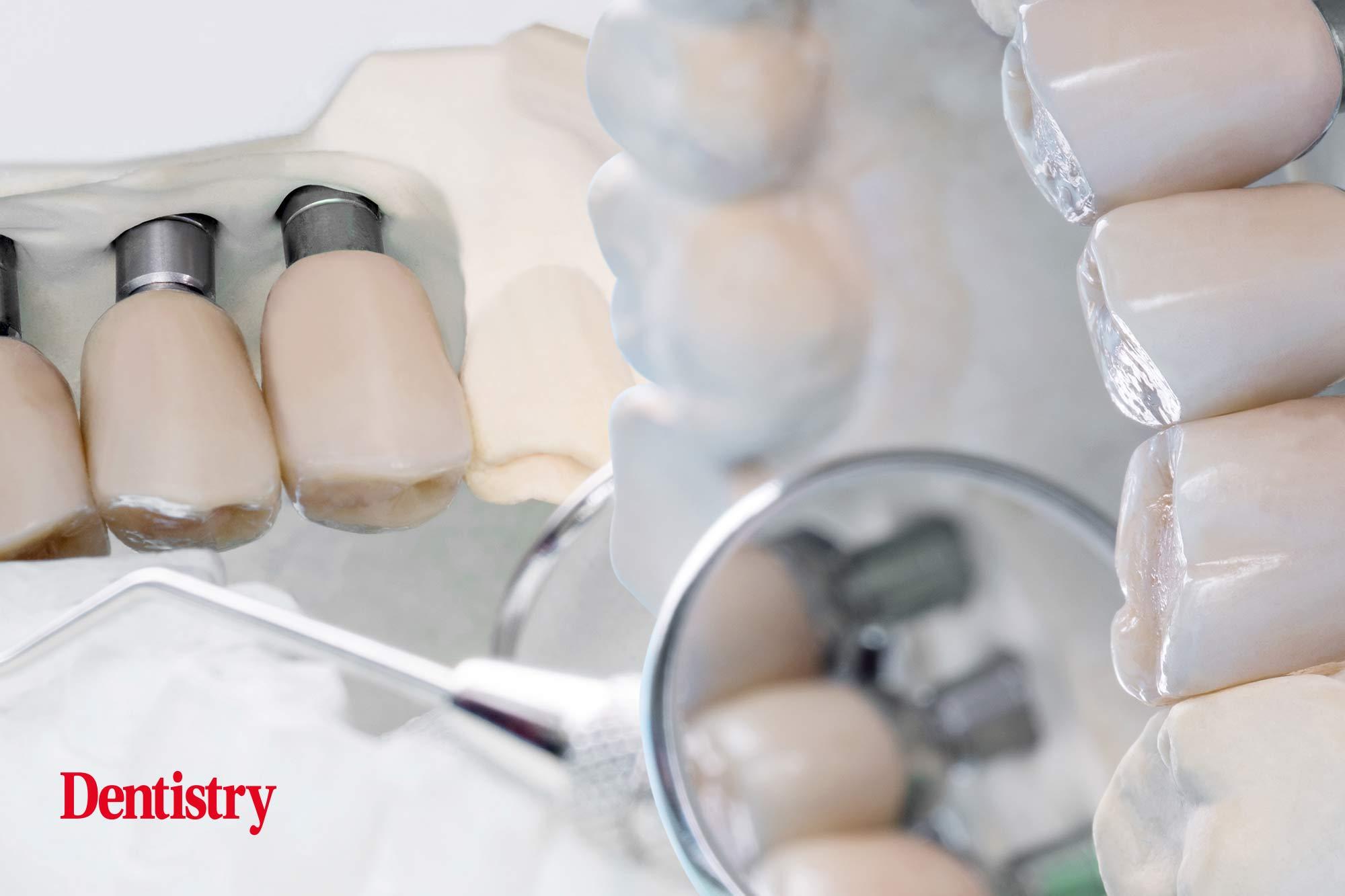perio-implant