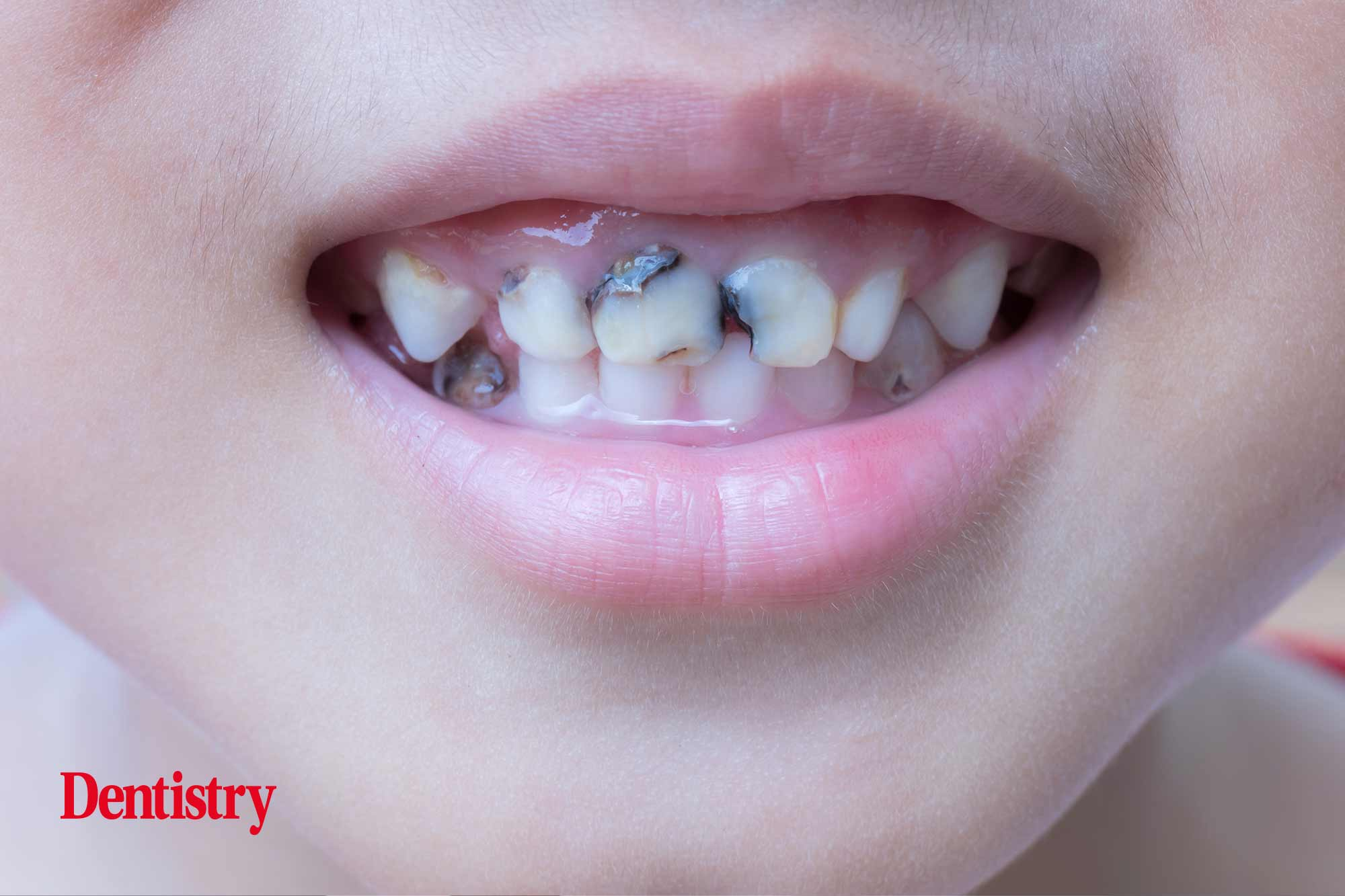 More than 10% of England's three year olds are suffering from decayed teeth, a new report reveals