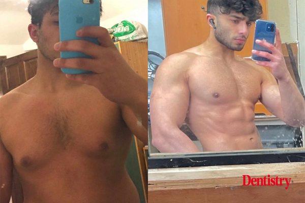 Zack Chug fitness journey