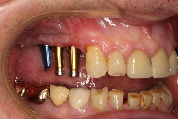 impressions for implants