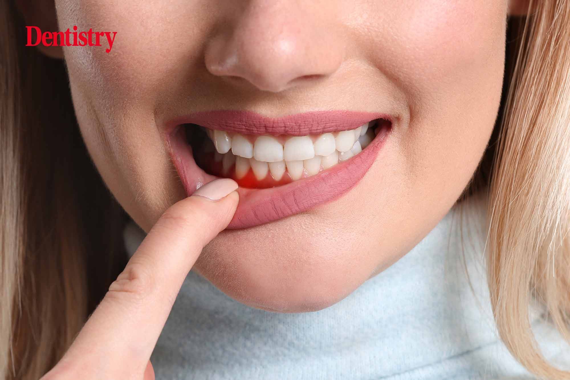 More effective preventative measures for oral care could save billions in healthcare costs