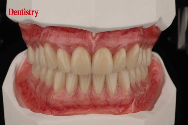 implant technology ivoclar